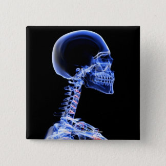 X-ray of the bones in the neck 15 cm square badge