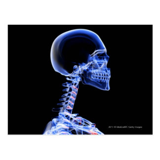 X-ray of the bones in the neck postcard