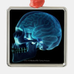 X-ray of the brain inside a skull christmas tree ornaments