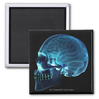 X-ray of the brain inside a skull square magnet