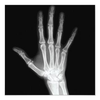 X-Ray Skeleton Arms Black & White 13 Cm X 13 Cm Square Invitation Card