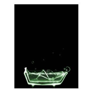 X-Ray Skeleton Bath Black Green Postcard