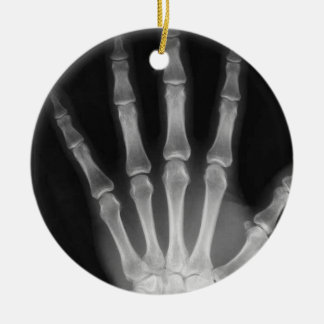 X-RAY SKELETON HAND FINGERS B&W CHRISTMAS ORNAMENT