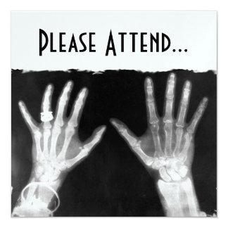 X-Ray Skeleton Hands & Jewelry - B&W 13 Cm X 13 Cm Square Invitation Card