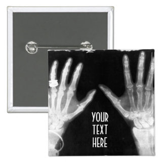 X-Ray Skeleton Hands & Jewelry - B&W 15 Cm Square Badge