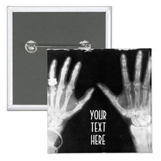 X-Ray Skeleton Hands & Jewelry - B&W 15 Cm Square Badge