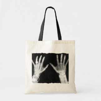 X-Ray Skeleton Hands & Jewelry - B&W Budget Tote Bag