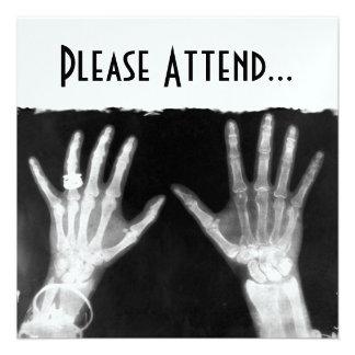 X-Ray Skeleton Hands & Jewelry - B&W Custom Invitations