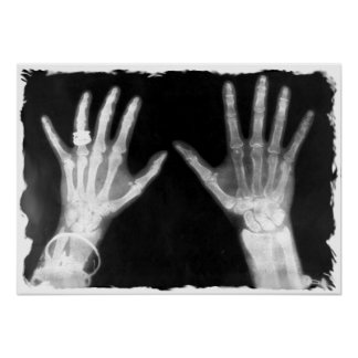 X-Ray Skeleton Hands & Jewelry - B&W Poster