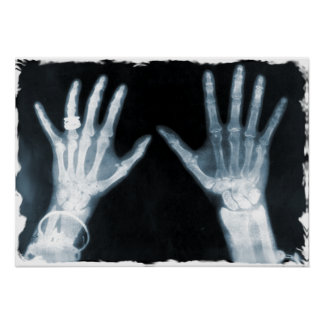 X-Ray Skeleton Hands & Jewelry - Blue Poster