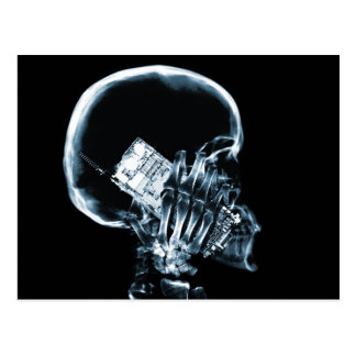 X-RAY SKELETON ON PHONE - BLUE POST CARDS