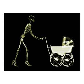 X-RAY SKELETON WOMAN & BABY CARRIAGE - YELLOW POSTCARD