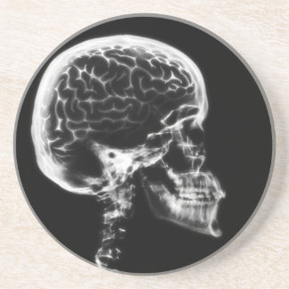 X-RAY SKULL BRAIN - BLACK & WHITE COASTER