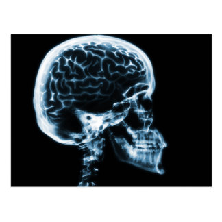 X-RAY SKULL BRAIN - BLUE POSTCARD