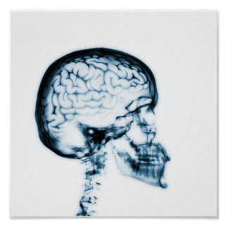 X-RAY SKULL BRAIN - BLUE POSTER