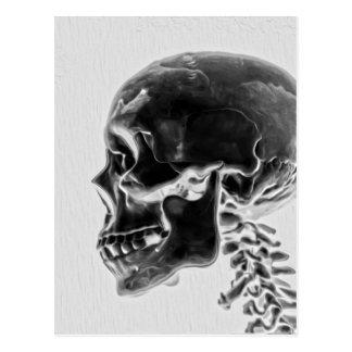 X-Ray Skull Postcard