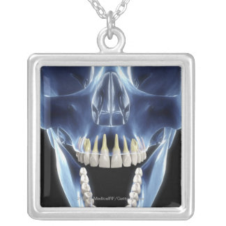X-ray style look at human teeth silver plated necklace