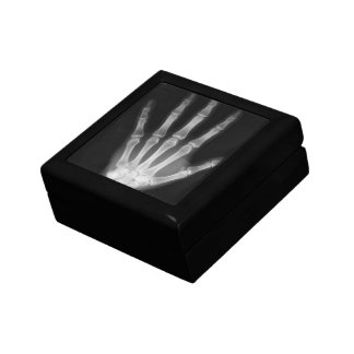 X-Ray Vision Human Hand - Black & White Gift Box