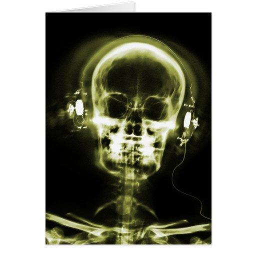 X-RAY VISION MUSIC HEADPHONES SKELETON - YELLOW