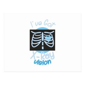 X-Ray Vision Postcard