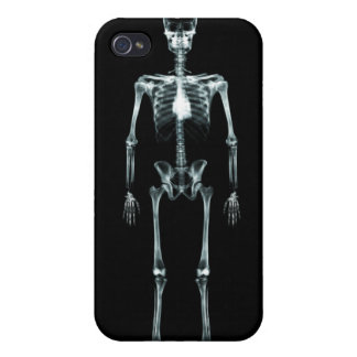 X-Ray Vision Single Skeleton - Black Original iPhone 4 Cover