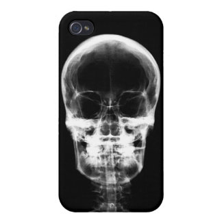 X-RAY VISION SKELETON SKULL - B&W iPhone 4 COVER