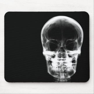 X-RAY VISION SKELETON SKULL - B&W MOUSE PAD