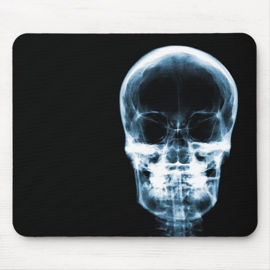 X-RAY VISION SKELETON SKULL - Blue Mouse Pad