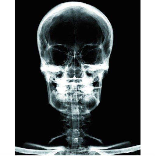 X-RAY VISION SKELETON SKULL - ORIGINAL PHOTO SCULPTURES