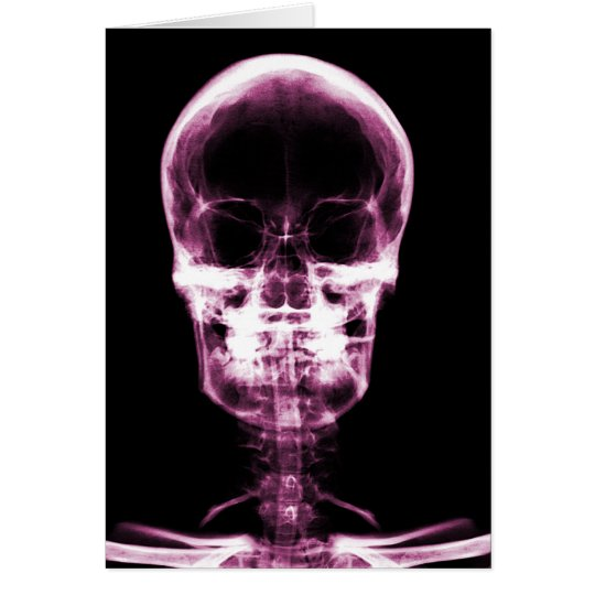 X-RAY VISION SKELETON SKULL - PINK CARD