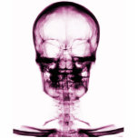 X-RAY VISION SKELETON SKULL - PINK PHOTO SCULPTURE