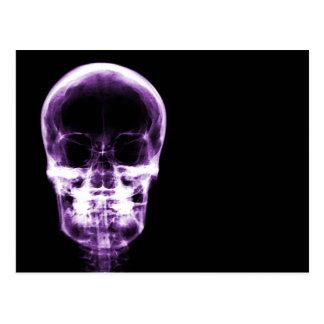 X-RAY VISION SKELETON SKULL - PURPLE POSTCARD