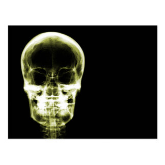 X-RAY VISION SKELETON SKULL - YELLOW POSTCARD