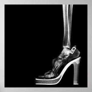 XRAY HIGH HEEL LADY SKELETON FOOT B&W POSTER