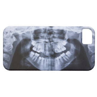 Xray of a girls jawline taken with a panoramic iPhone 5 cover