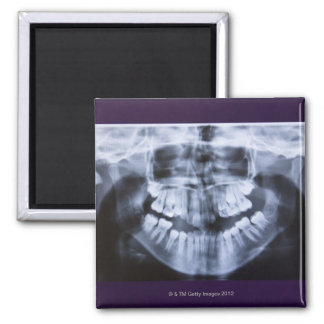 Xray of a girls jawline taken with a panoramic magnet