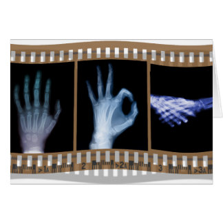XRAY SIGN LANGUAGE FILM - HAND OK HANDSHAKE CARD